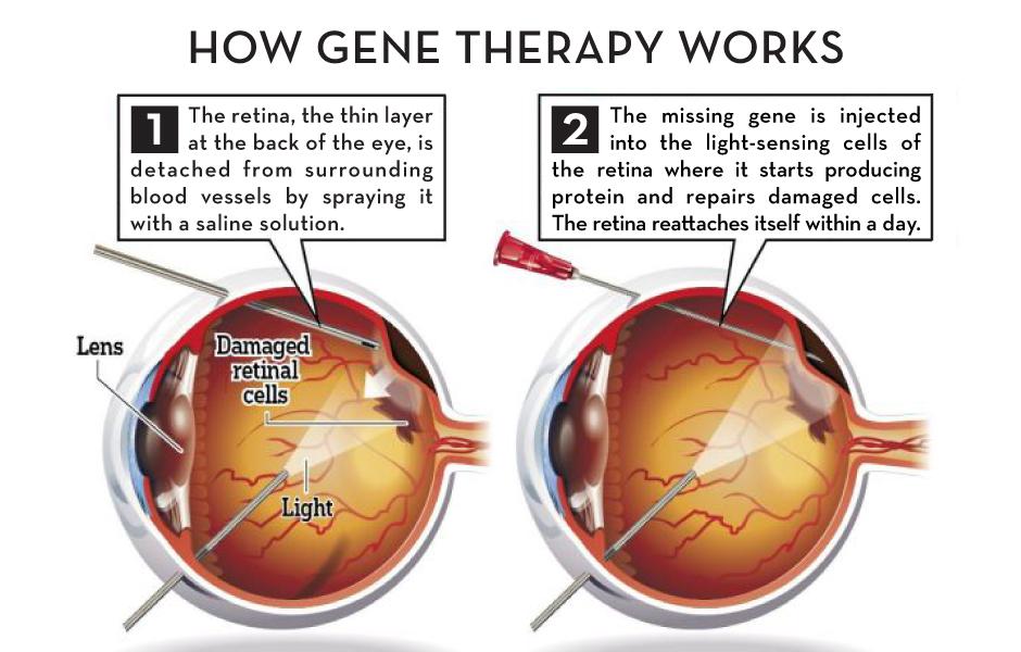Eye Doctors In Chicago Expert Service Village Eyecare